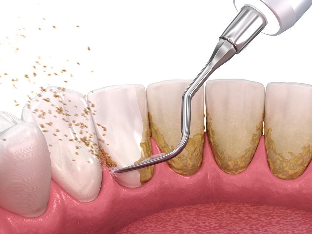 Виды профессиональной чистки зубов - Epion