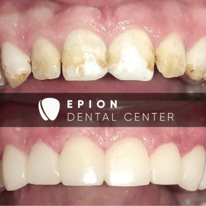 Художня реставрація зубів (флюороз, тяжка форма)