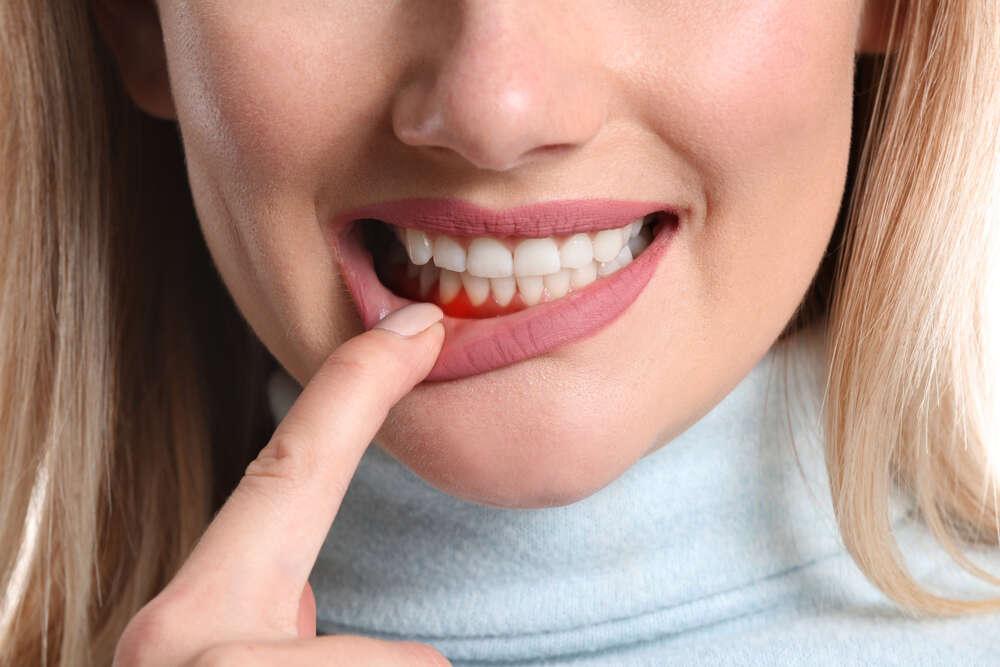 Причины воспаления десны - Epion Dental Center