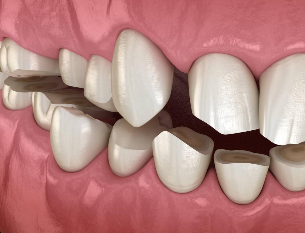 Стирання зубів при бруксизмі - Epion Dental Center