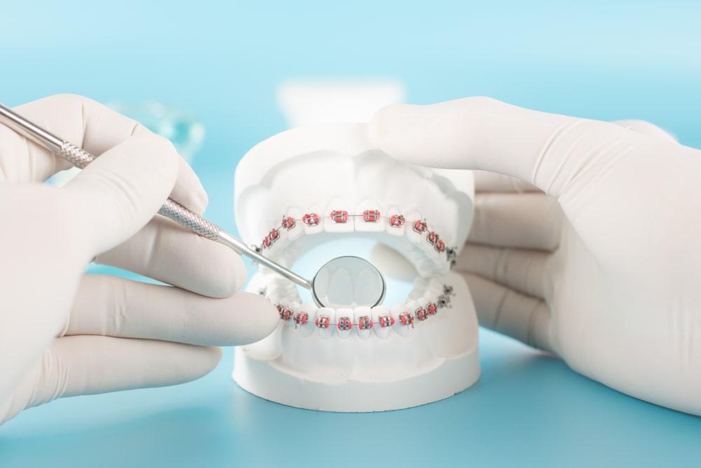 Показания для ортодонтического лечения - Epion Dental Center
