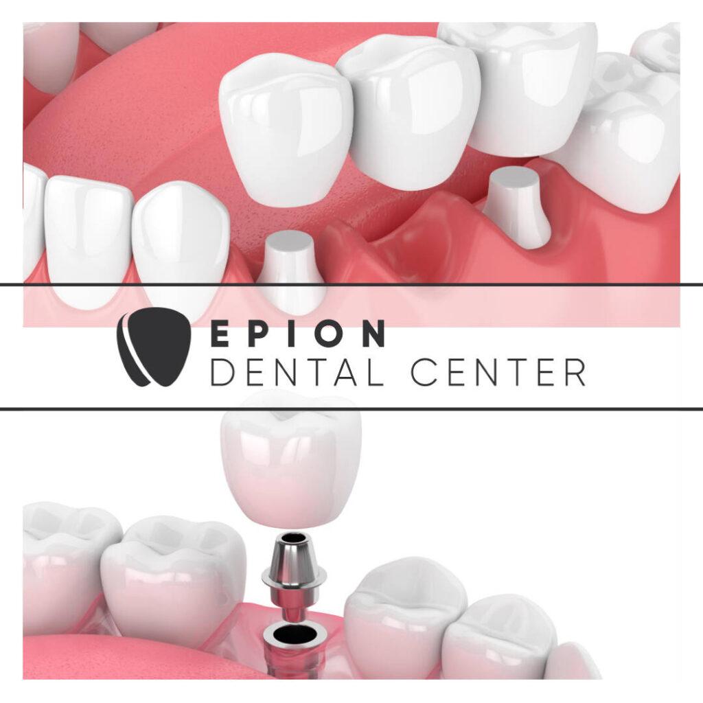 Що поставити: імплант або міст - Epion Dental Center