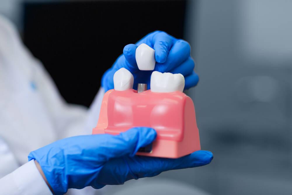 Как ставят импланты зубов - Epion Dental Center