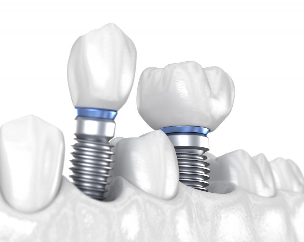 Одноетапна і двоетапна імплантація - Epion Dental Center