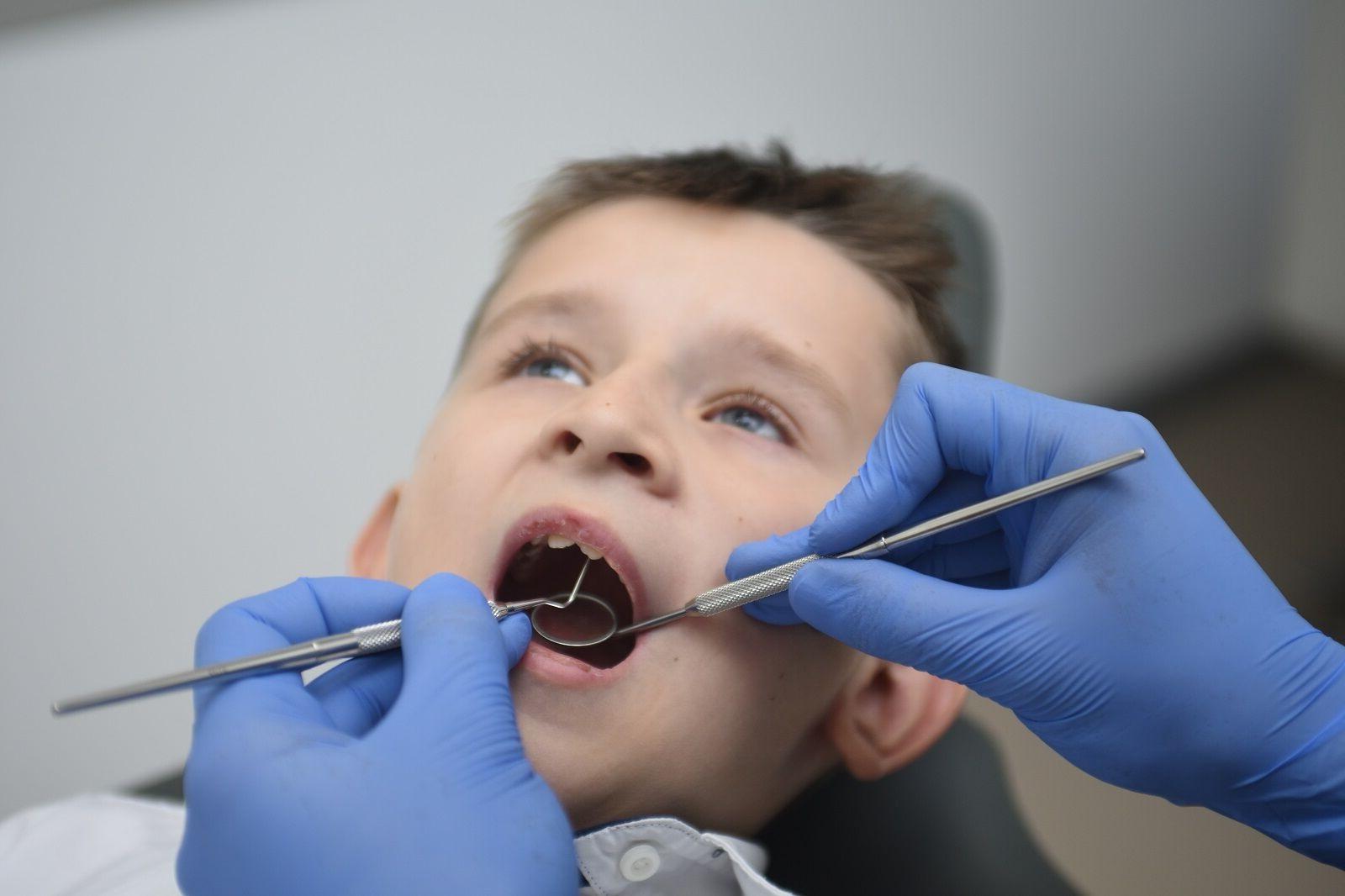 Лазерная пластика уздечки губ и языка в Киеве (Лукьяновка)   Epion Dental Center